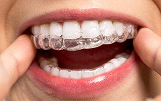 L'ortodonzia come terapia per gli adulti