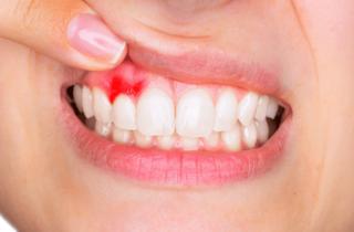 Il troppo storpia: il sanguinamento gengivale!