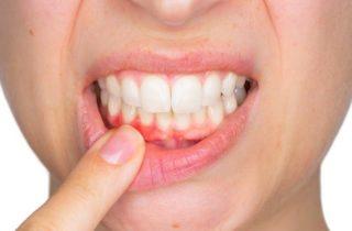 Denti e non solo, la parodontologia!