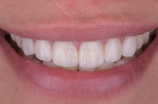 Un sorriso a trentadue denti perfetti!